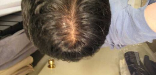 Know More About Hair Loss In Men